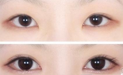 商丘双眼皮手术过程(图)