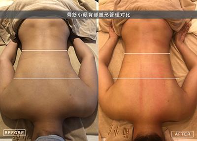 2019年骨筋小颜日式整骨加盟报名优惠中_1